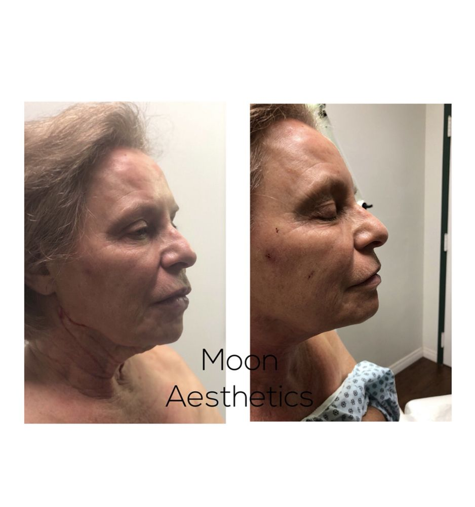 Before & After of neck treatment using PDO threads - Yelp