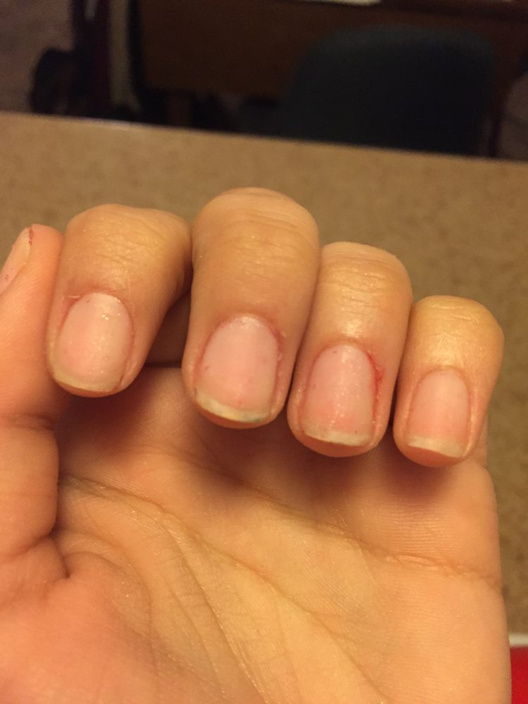 These are my nails when I LEFT Luv Nails. Completely destroyed. I ...