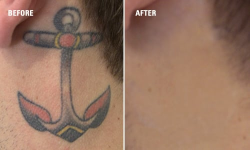 Tattoo removal results before after yelp for Tattoo removal az