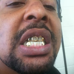 How much are permanent gold teeth
