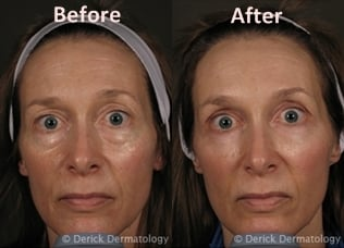 For Girls Spa Services u2013 Before u0026amp; After Photos of Juvederm XC ...