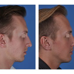 Jason Roostaeian, MD - 75 Photos & 36 Reviews - Cosmetic Surgeons