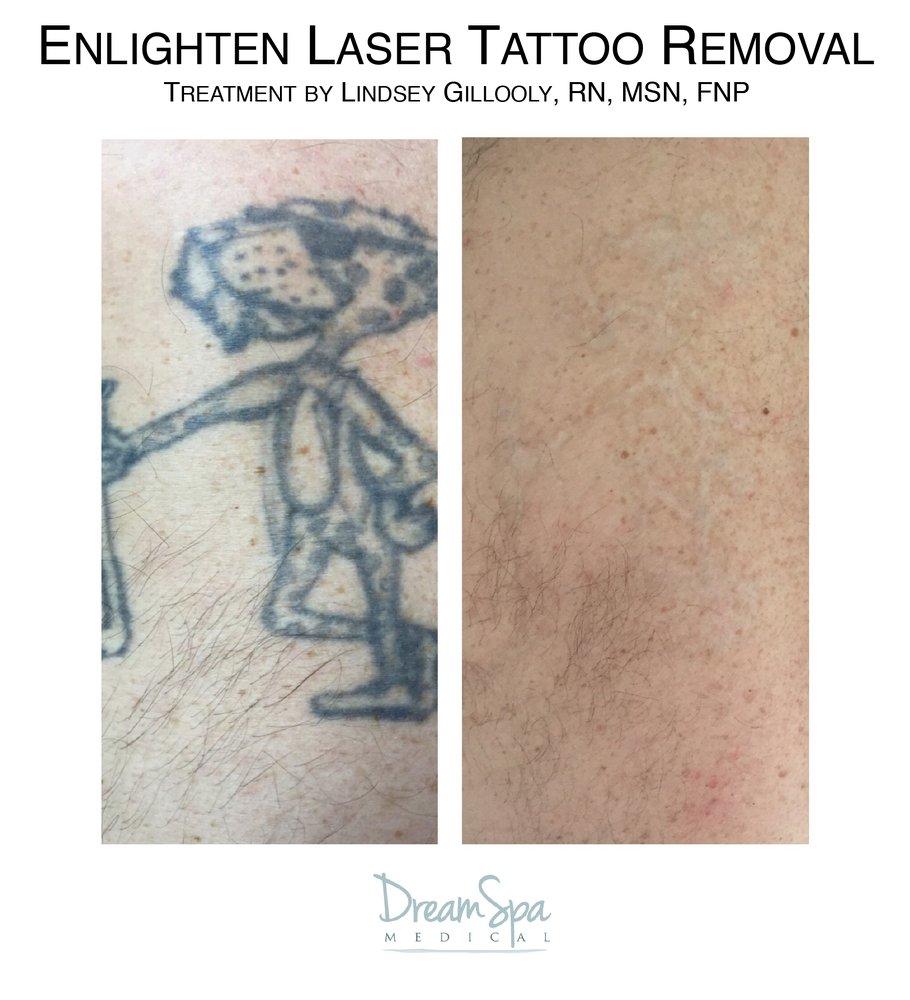 Cutera Enlighten for Laser Tattoo Removal - Yelp