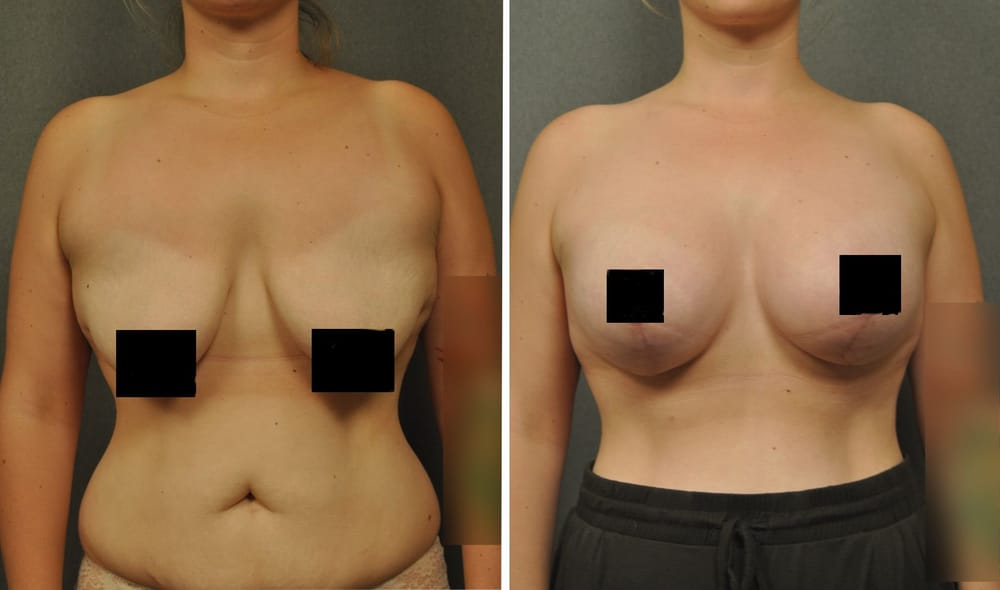 49 photos for Gilbert Lee, MD - Changes Plastic Surgery & Spa