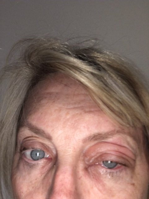 Infection After Micro Blading Eyebrows Week One Has Lasted Four