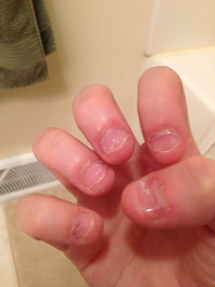 My acrylics fell off in a matter of two days and were lifting a day ...