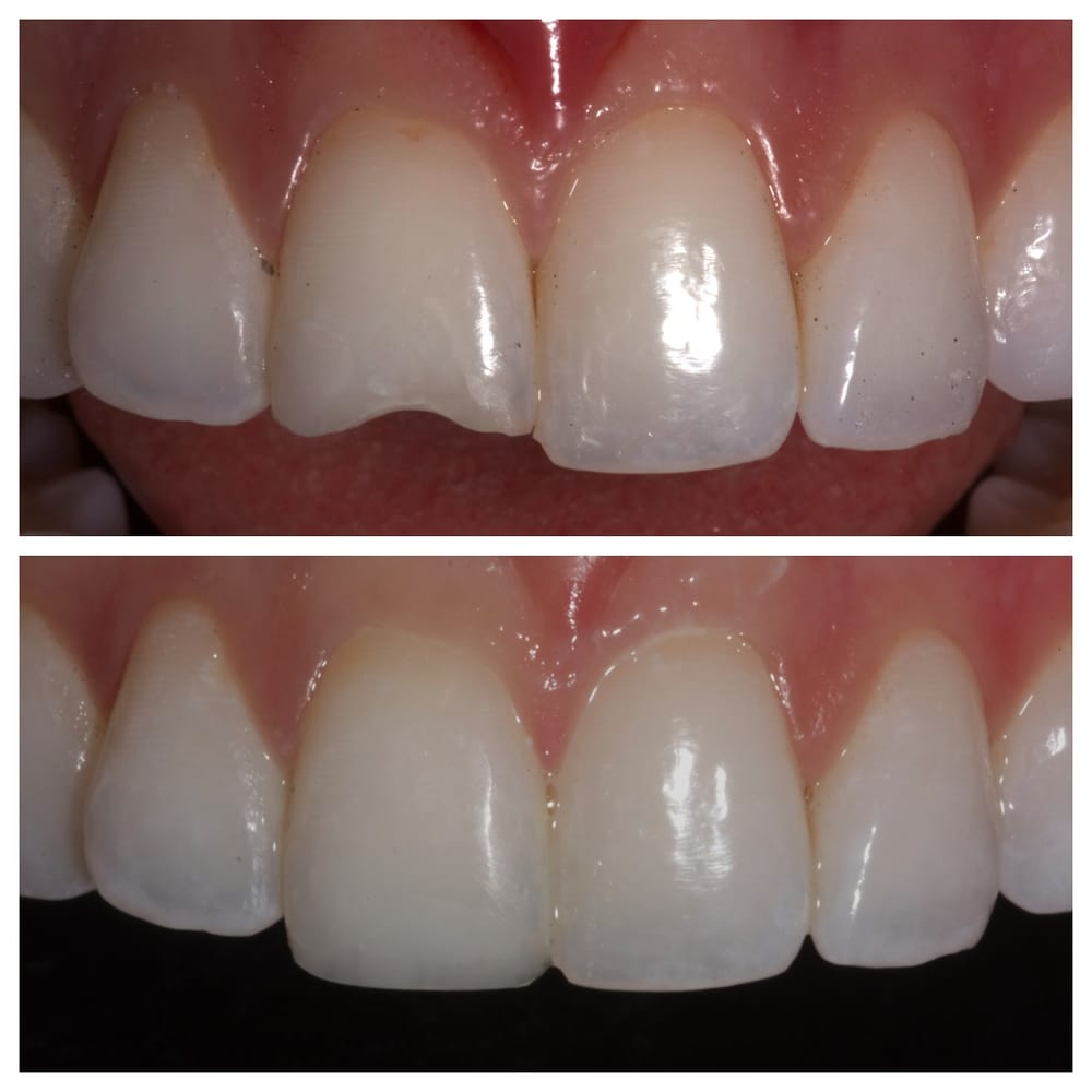 Chipped tooth before and after