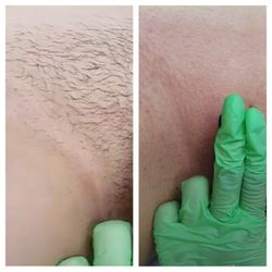 waxing hair removal men amp women ayurve salon myer sydney