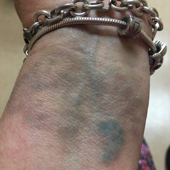 Dr tattoff atlanta closed 15 reviews laser hair for Atlanta tattoo removal