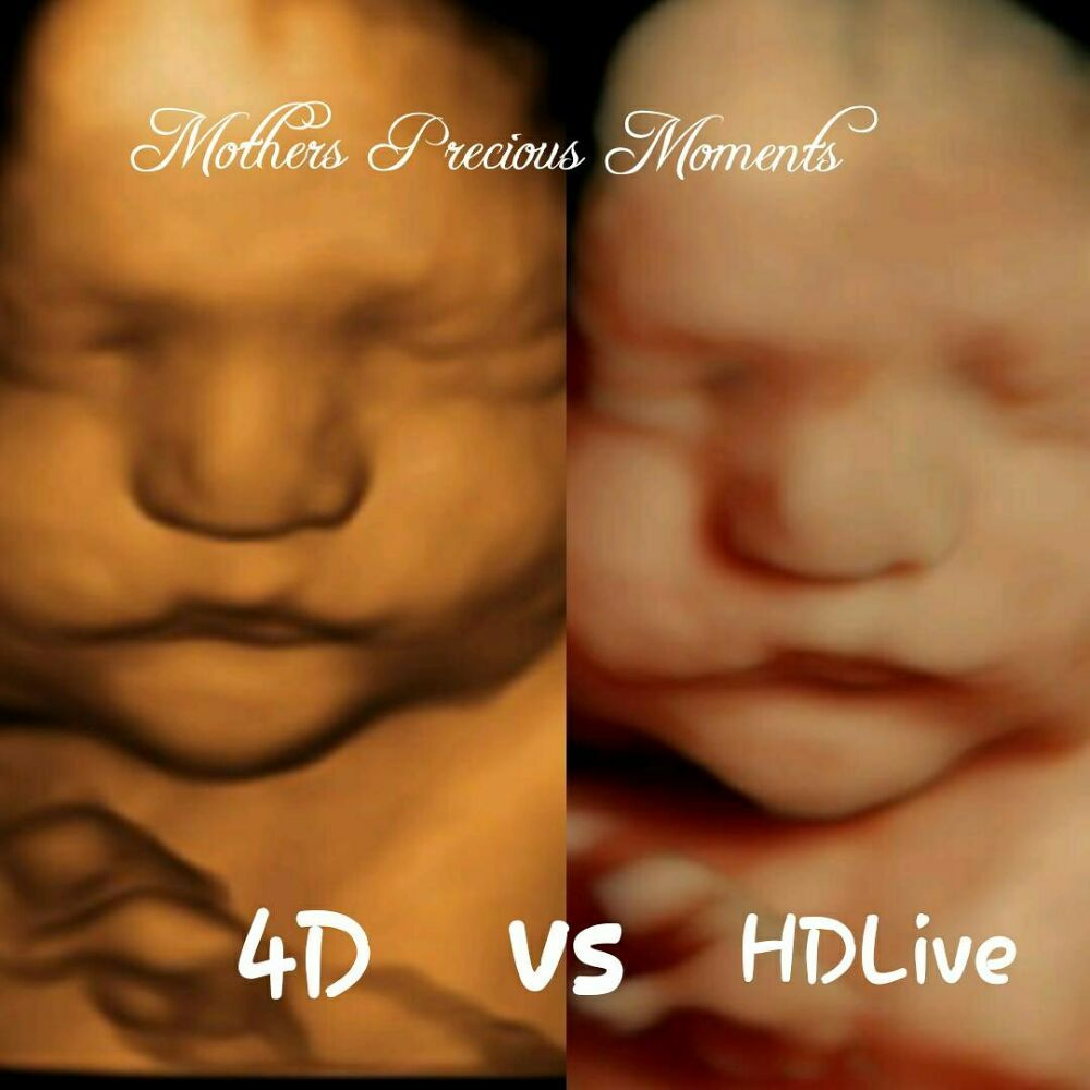Mothers Precious Moments - 4D/HD Ultrasound - Cherished Memories