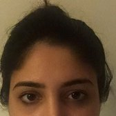 Electrolysis Unibrow Before And After