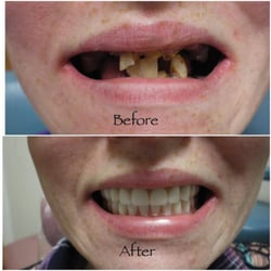 Young person with dentures