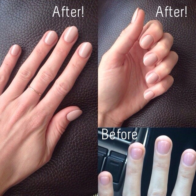 Nail Extensions Gel: Before Photo Shows My Nails At The Length They Are