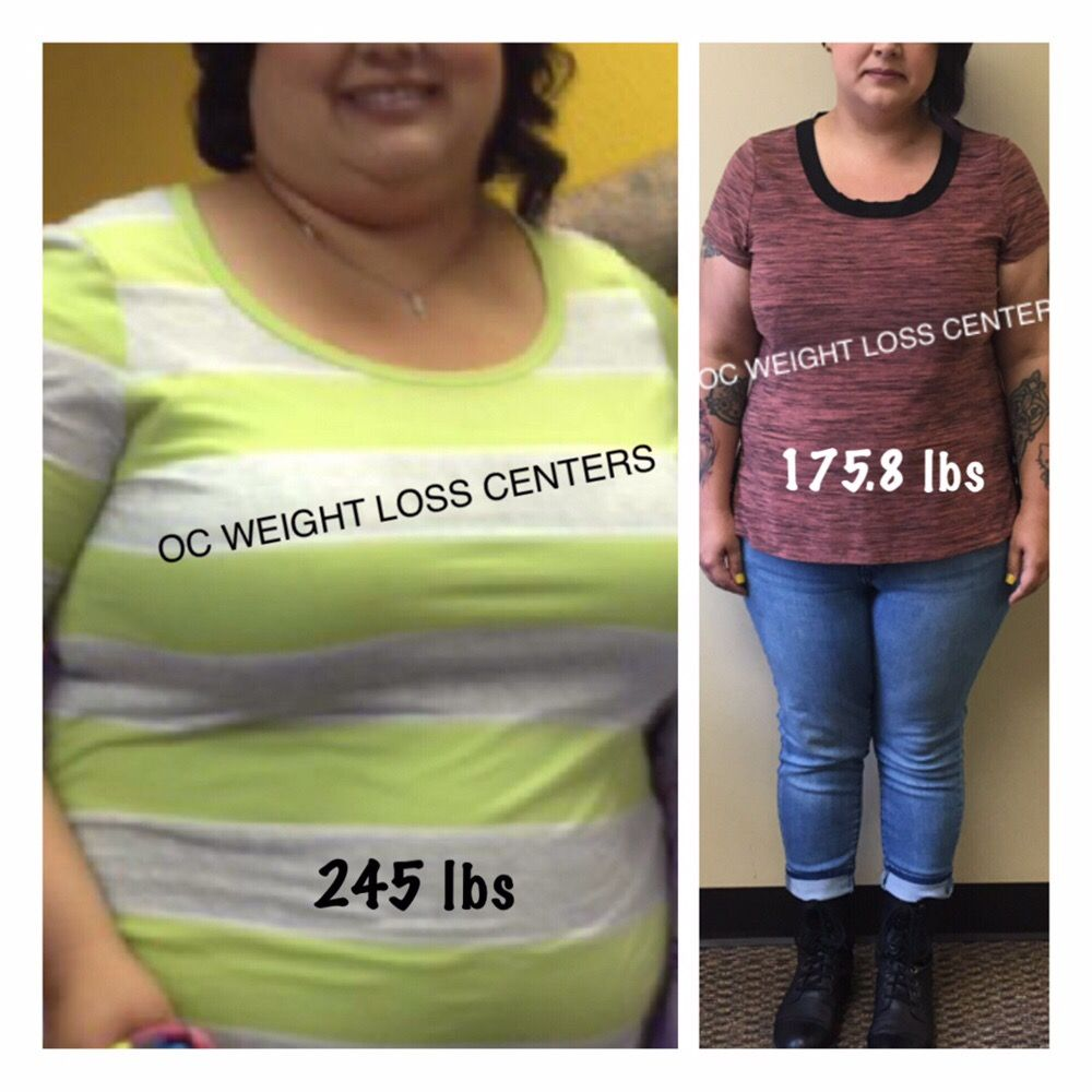 OC Weight Loss Centers und Coolsculpting