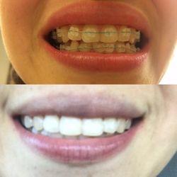 Western dental orthodontics 125 reviews general dentistry photo of western dental orthodontics san jose ca united states solutioingenieria Choice Image