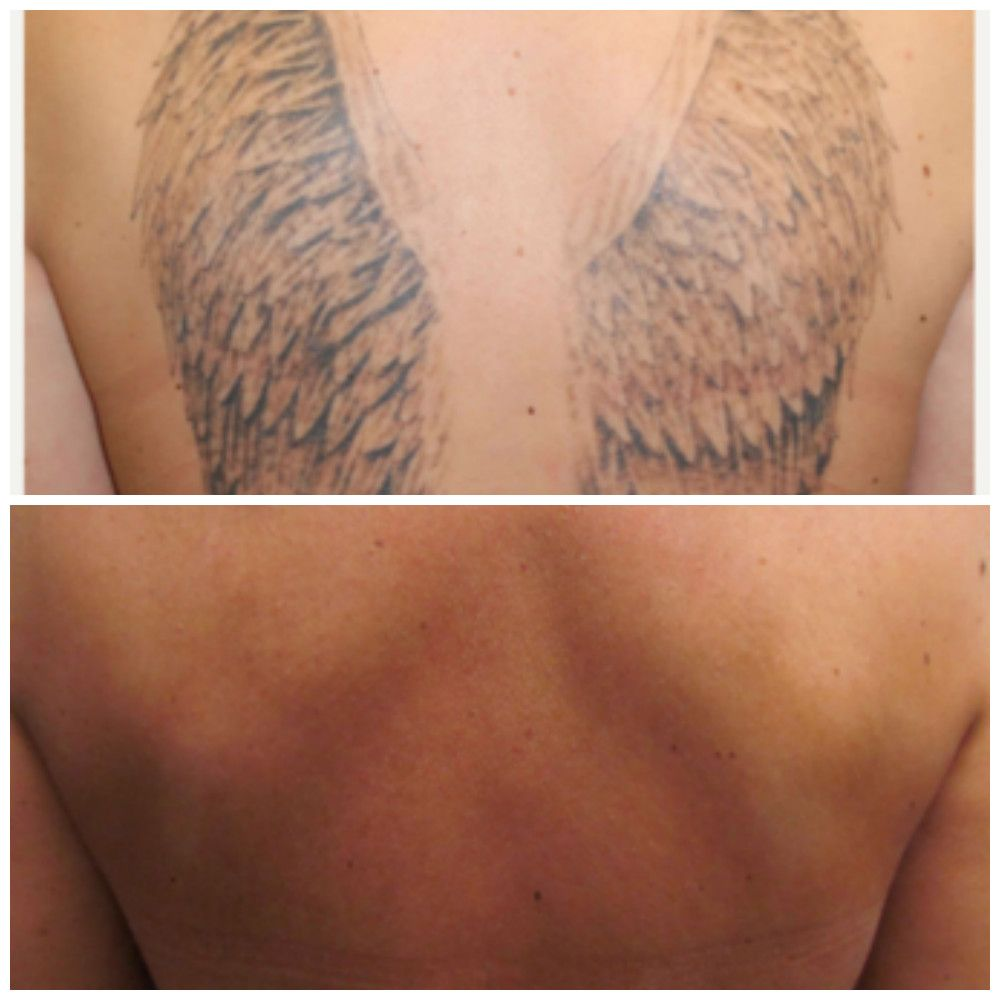 Before and after tattoo removal treatments at Dr. J. J. Wendel ...