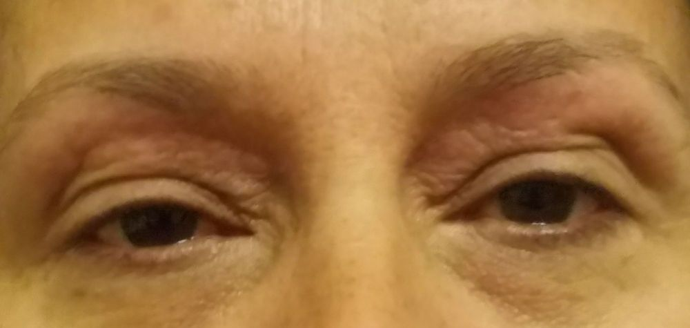 Got My Eyebrows Done 2 Days Ago Horrible In Pain Red Itching