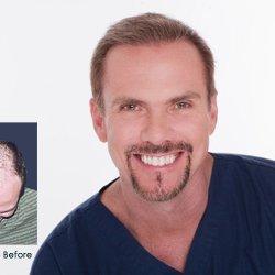 Top 10 Best Hair Restoration in Austin, TX - Last Updated