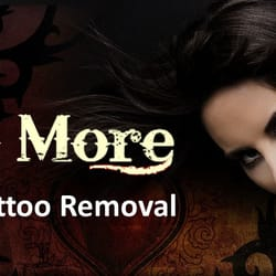Inked No More Tattoo Removal - CLOSED - 10 Photos - Tattoo Removal ...