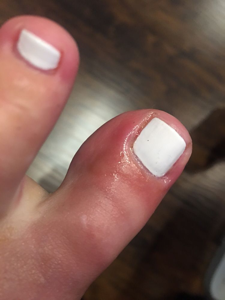 Infection from a pedicure I got here. Beware. - Yelp