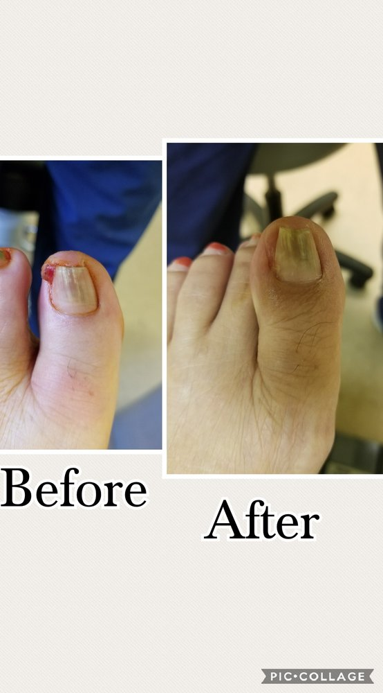 Before and after ingrown toenail surgery - Yelp