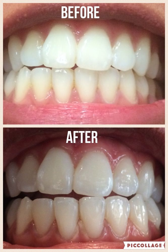 Smiling Bright 24 Photos 169 Reviews Teeth Whitening 3168 N