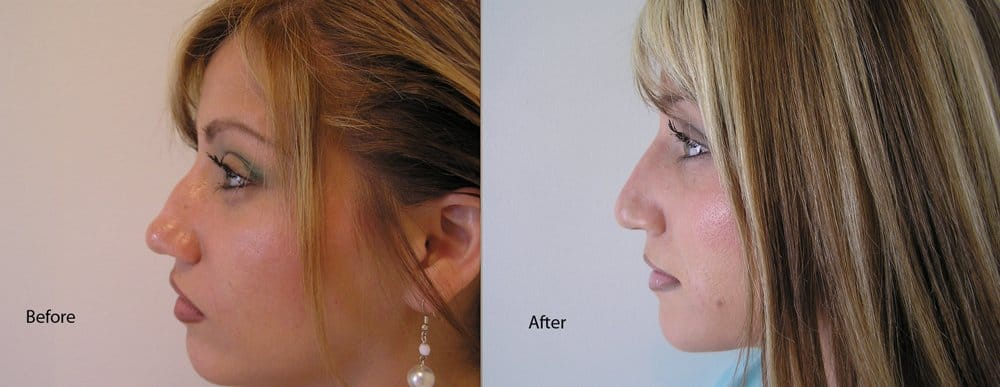 Non Surgical Nose Job - Bumpy Nose  Dr  Rivkin injected