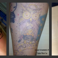 Tattoo Must Go - Tattoo Removal - 4465 Northpark Dr, Colorado ...