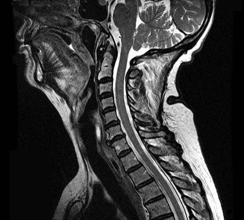 Radiology X-Ray Technician Schools near Pacifica CA 94044