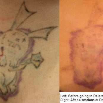 Delete tattoo removal and laser salon 93 photos 41 for Tattoo removal az