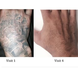 Photo Of Tattoo Removal South Gate Ca United States