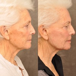 Ben Talei, MD - 187 Photos & 110 Reviews - Cosmetic Surgeons - 465 N