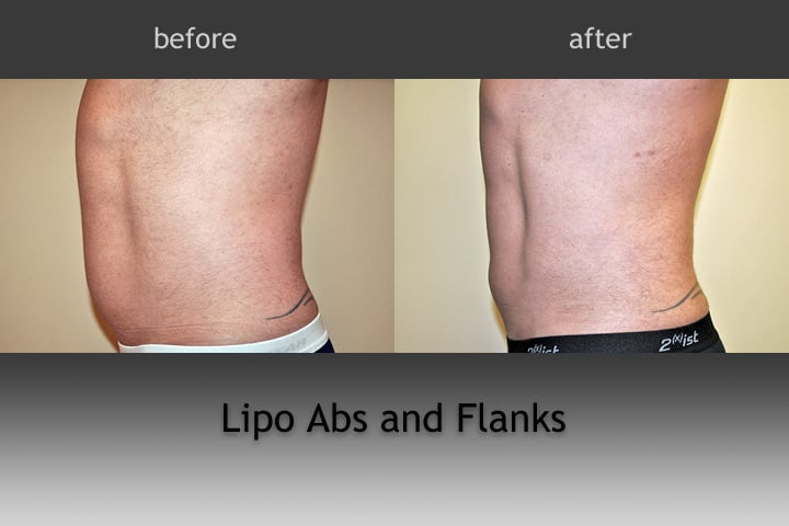Lipo On Love Handles
