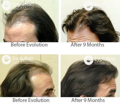 Evolution Hair Loss Institute