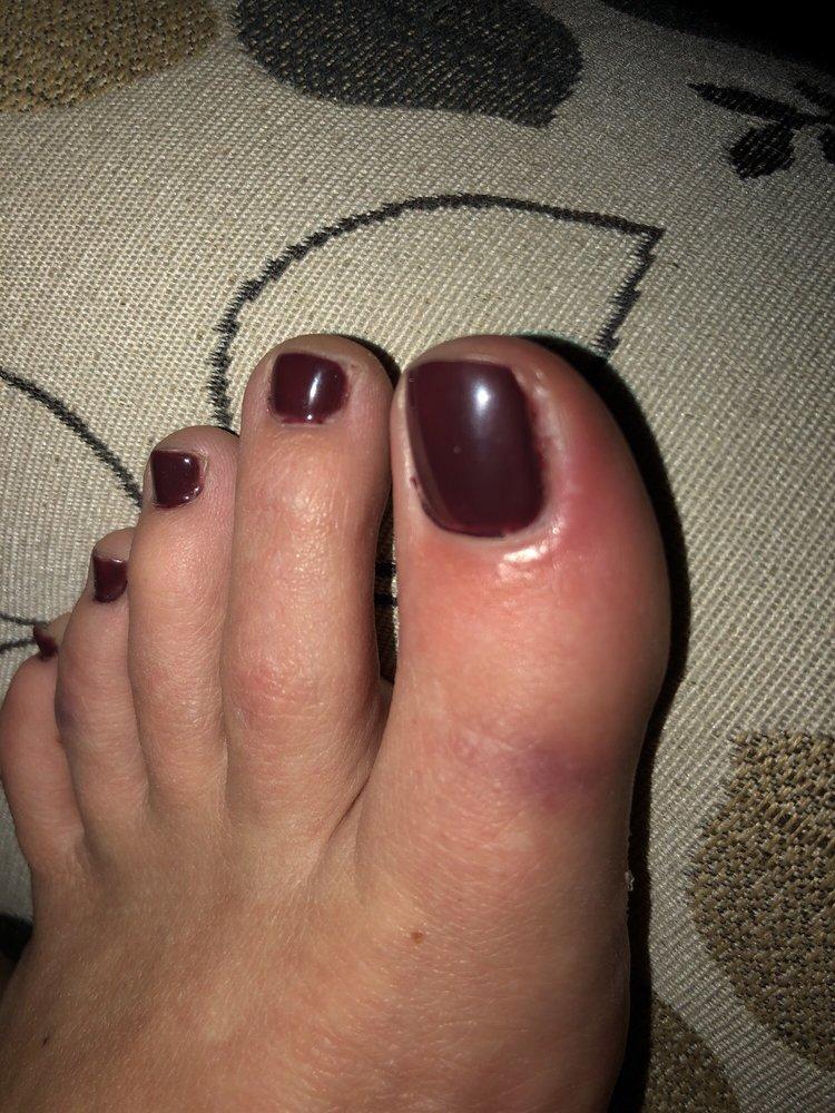 Infection around big toenail from nicking the skin. - Yelp