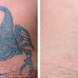 Tattoo removal in san antonio tx