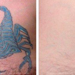Photo Of Eraser Clinic Laser Tattoo Removal San Antonio Tx United States