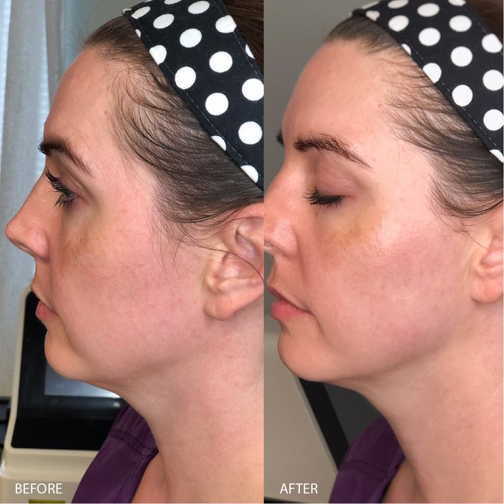 HiFu Treatment for anti-aging and skin tightening results - Yelp