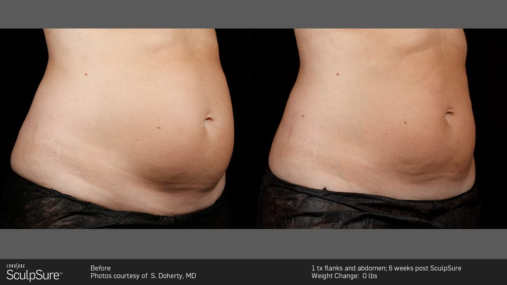 The SculpSure Center of Beverly Hills - Cosmetic Surgeons