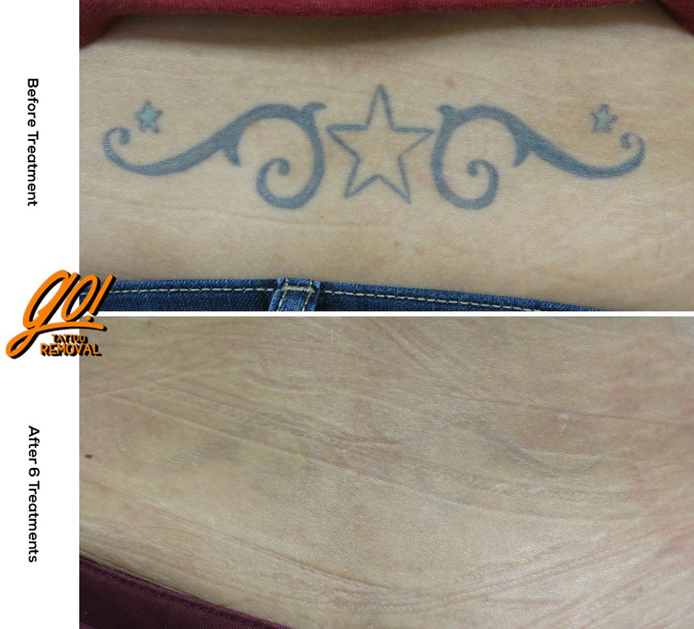 GO! Tattoo Removal: 1011 Brookside Rd, Allentown, PA