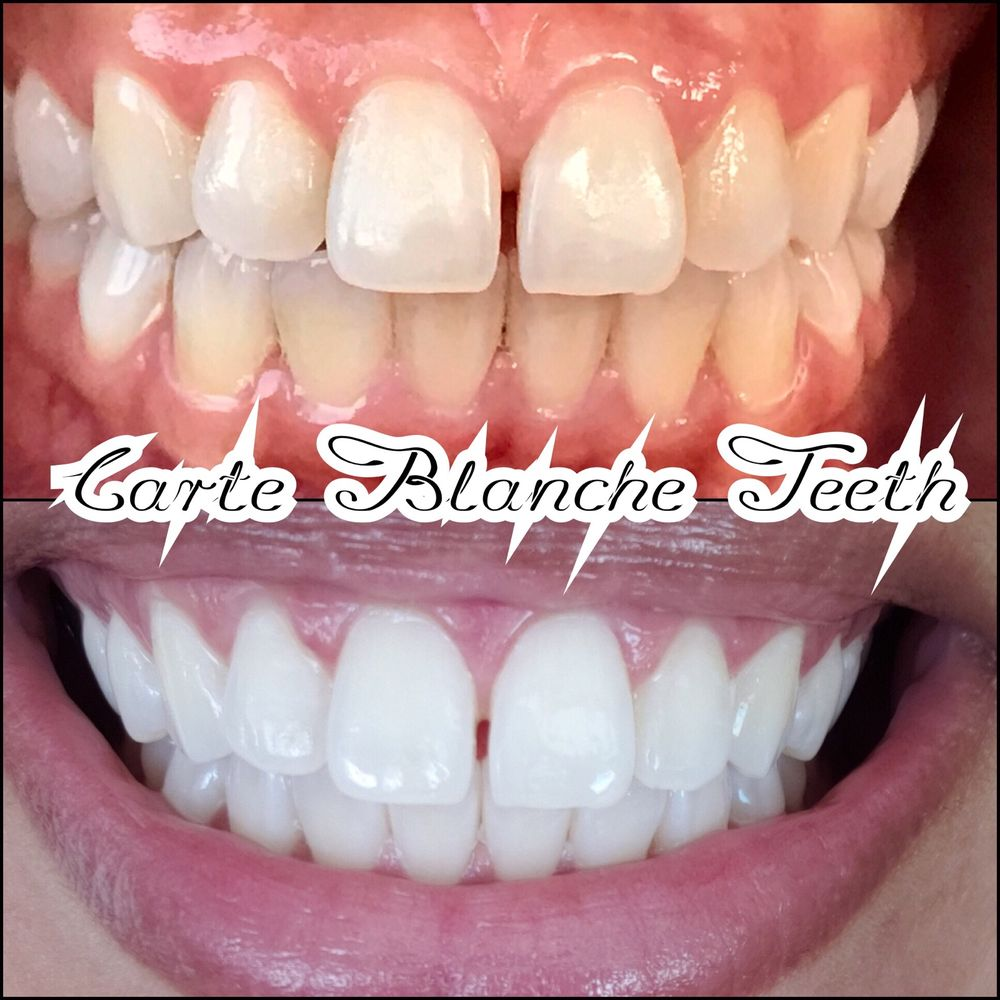 Carte Blanche Teeth Whitening