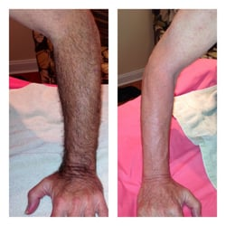 MPM Hair Removal Studio Exclusively for Men - 13 Photos & 11 Reviews