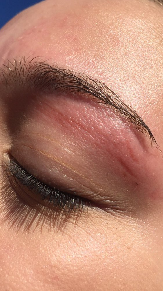 My Daughters Skin Was Ripped Off During A Eyebrow Wax The Lady