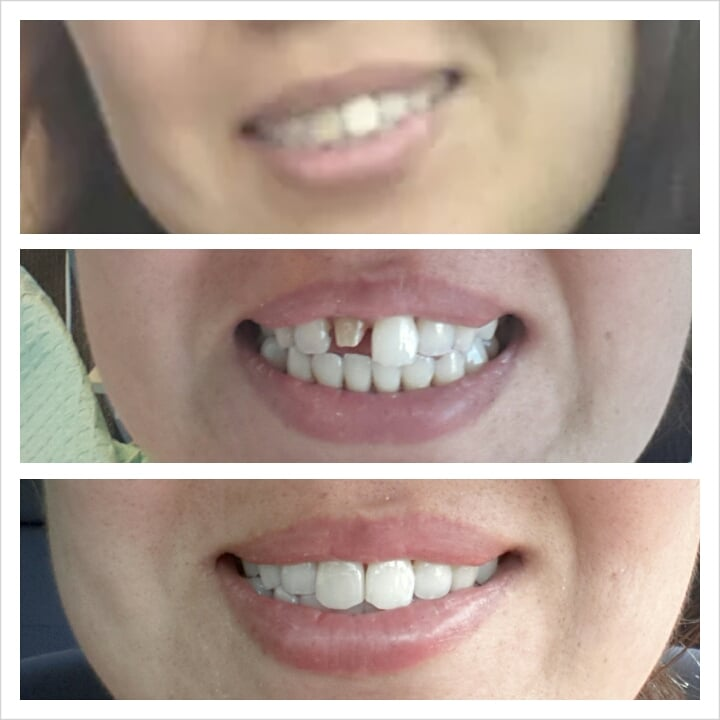 Before Filing My Tooth B4 Temporary And Original Crown You Cannot