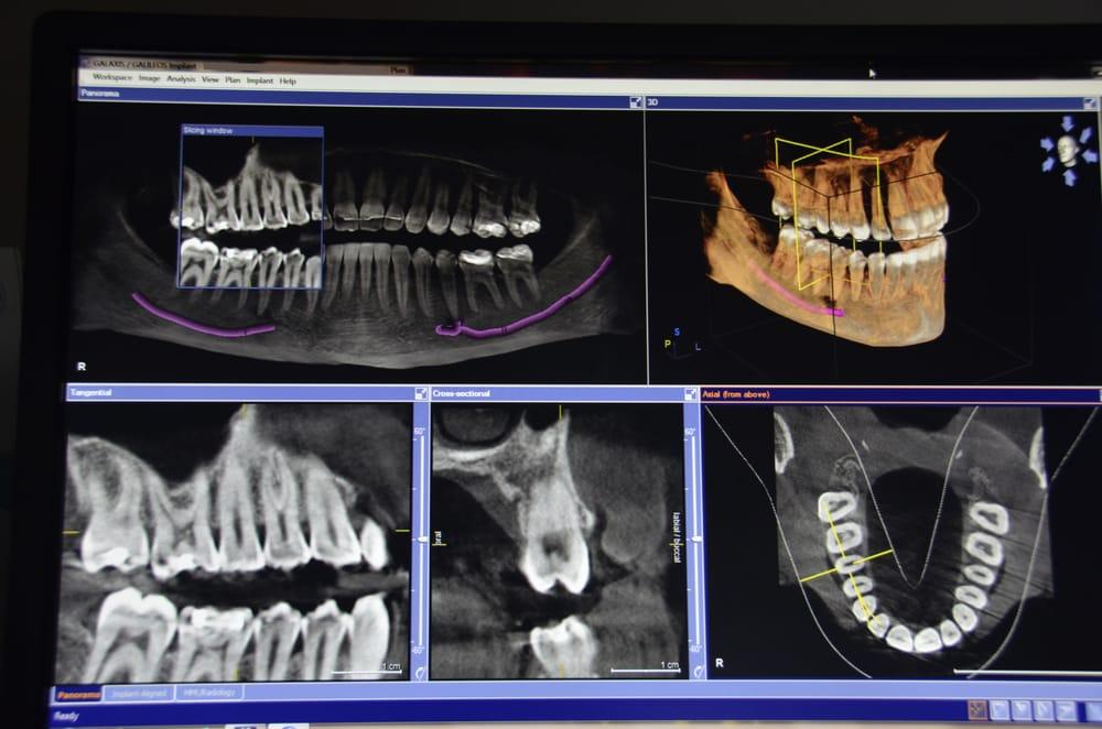 Today's Dental: 14406 Harrison St, Omaha, NE