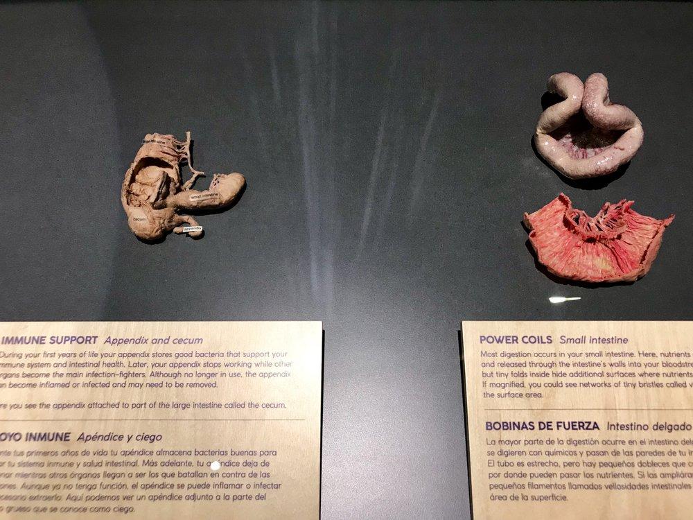 Excepcional Dónde Está Su Appendics Bosquejo - Anatomía de Las ...
