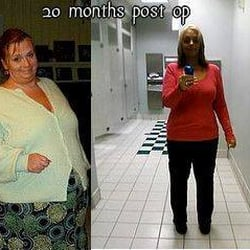Can you lose a lot of weight and not have loose skin