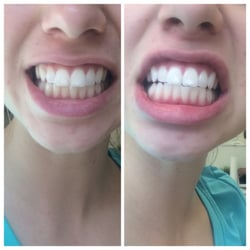 Photo Of Gleam Whitening Austin Tx United States