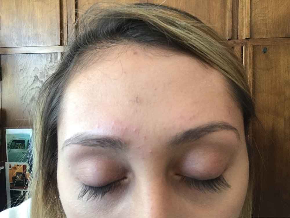 Some Breakout But My Skin Is Very Sensitive To Waxing And Threading
