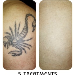 photos for second skin tattoo removal yelp. Black Bedroom Furniture Sets. Home Design Ideas